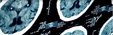 i-braininjuries